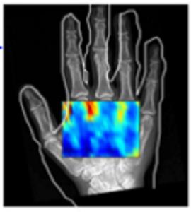 手の非接触超音波映像
